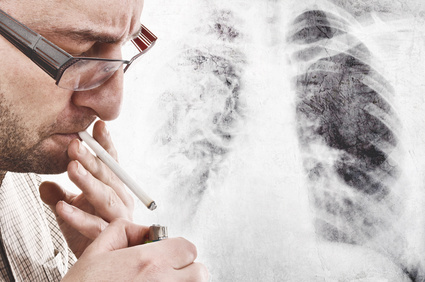 Lung Cancer and Smoking?, Risk Factors, Quiting, Cancer, Lung, Smokin