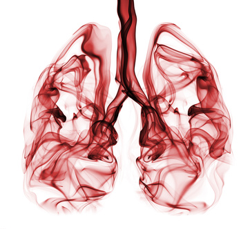 What are the Signs and Symptoms of Lung Cancer?, Bronchitis, Pneumonia, Yellow Skin, Signs, symptoms, Lung, Cancer