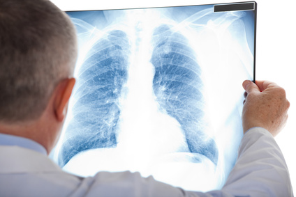 What Are Causes of Lung Cancer? Signs, Symptoms, Treatment, Prevention, national cpr foundation
