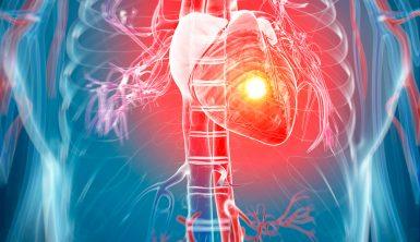 heart attack, heart attack treatment, heart attack treatmens, heart attack symptoms, symptoms, treatment